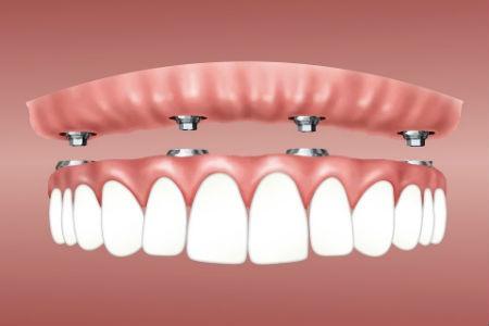 Regeneración e implantes cortos